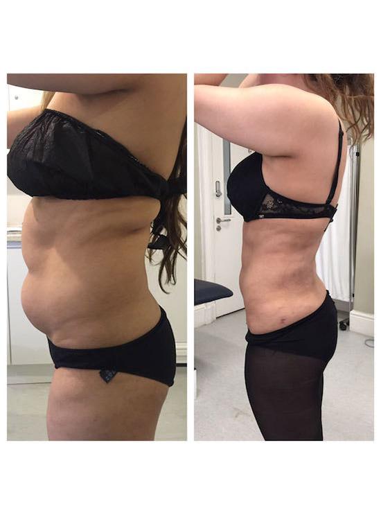 Vaser Liposuction or Vaser Lipo